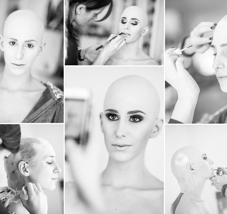 menschenbilder-glatze